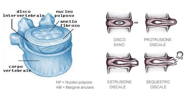 Cura noninvasiva di ernia intervertebrale