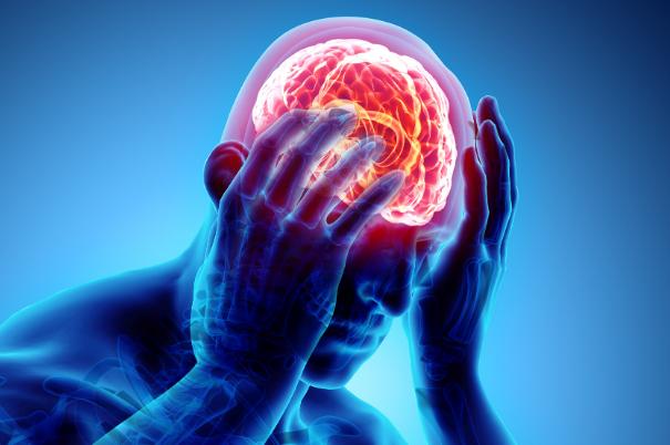 Le cefalee e il trattamento osteopatico